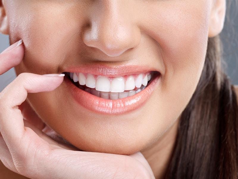 laser teeth whitening singapore